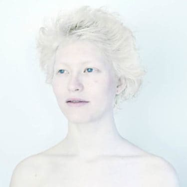 albinism-sanne-de-wilde-alba-ca-zapada-2