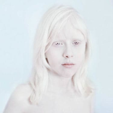 albinism-sanne-de-wilde-alba-ca-zapada-1