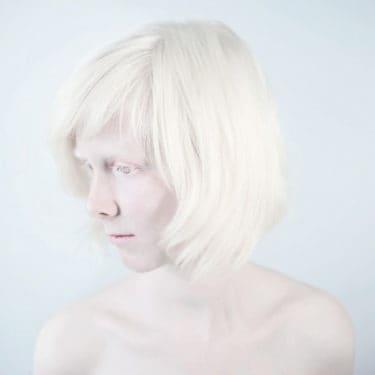 albinism-sanne-de-wilde-alba-ca-zapada-6