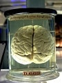 A history of ideas about the brain