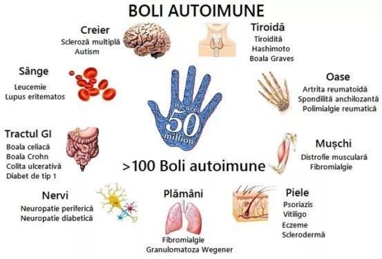 boli autoimune tiroida creier sange tractul gi