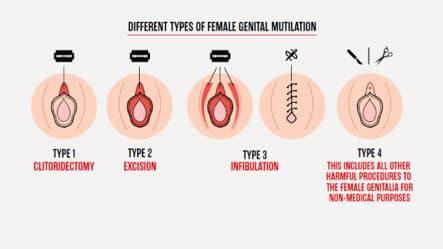 Mutilarea genitală feminină tipuri