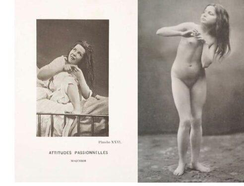 Isterie nuduri patologie arte plastice