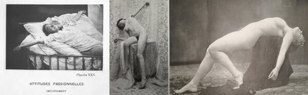 Isterie nebunie patologie isterica prostituata